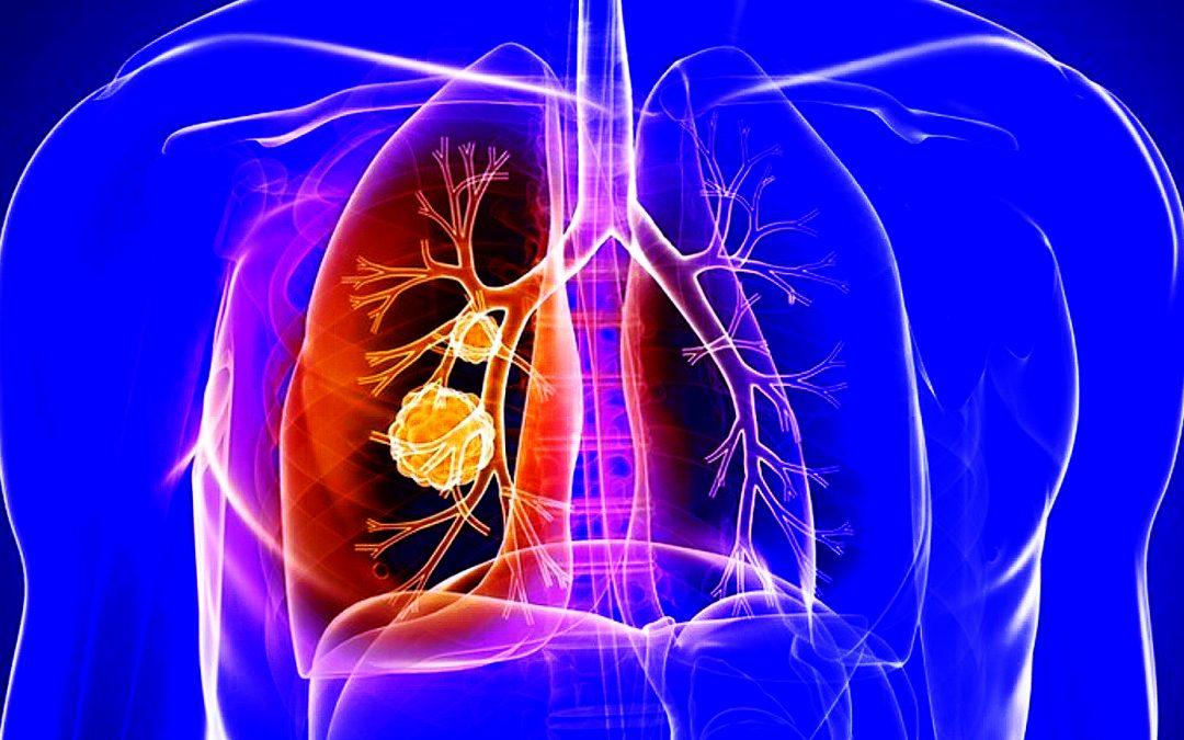 Cáncer de Pulmón. Una de las causas más comunes de muerte por cáncer.