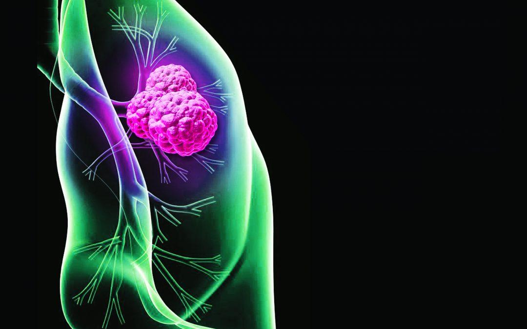 Cáncer de Pulmón. Un tipo de cáncer que a menudo se descubre en forma tardía.