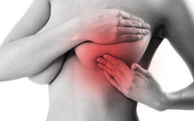 Importancia del autoexamen en cáncer de mama.