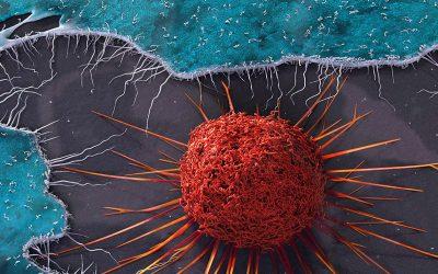 ¿Qué es el cáncer de cuello uterino?